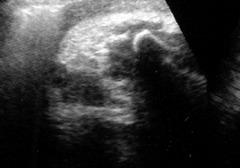 赤ちゃんのエコー写真 (36週2日) 10ヶ月